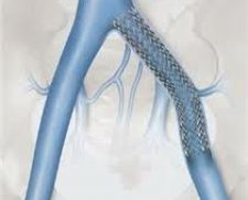 Cook Medical Zilver Vena Self Expanding Stent | Used in Vascular stenting, Venous stenting  | Which Medical Device